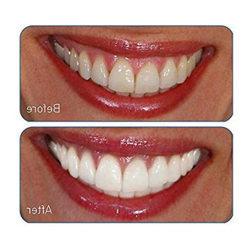 Go Smile Premium Teeth Tooth For Healthier Brighter Teeth | Instant Safe On Dental Crowns, Veneers,